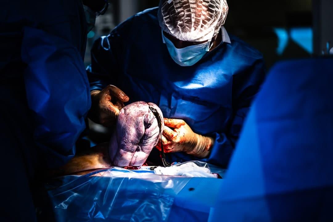 Photographe accouchement césarienne maternité de Gien Loiret France bébé naissance