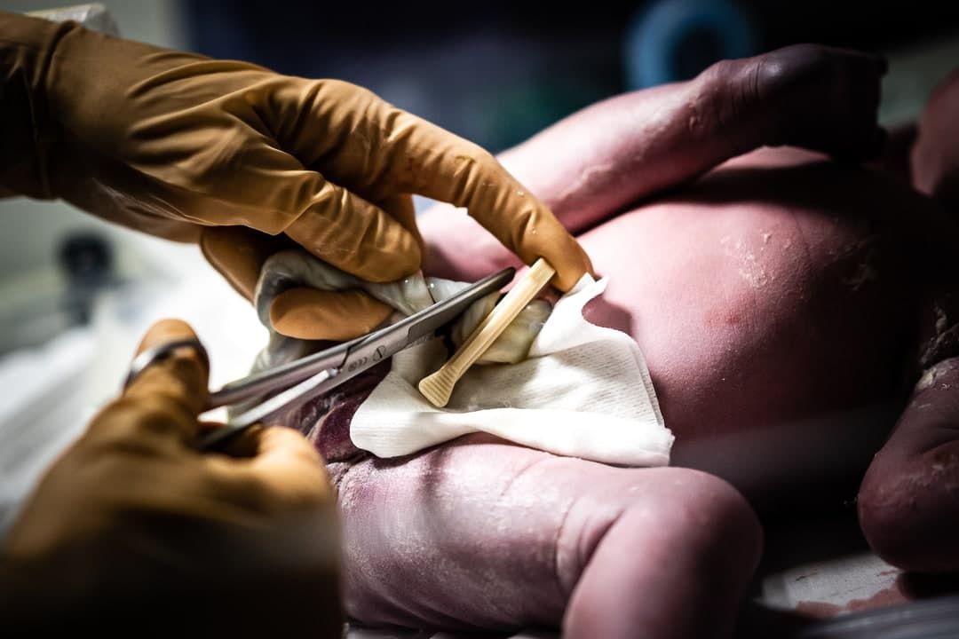 Photographe accouchement césarienne maternité de Gien Loiret France couper cordon